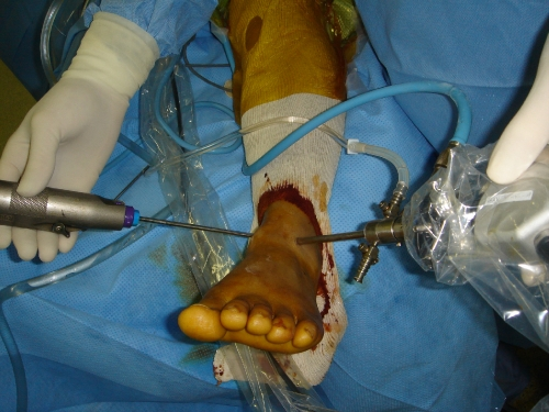 Conflit antérieur - Arthroscopie