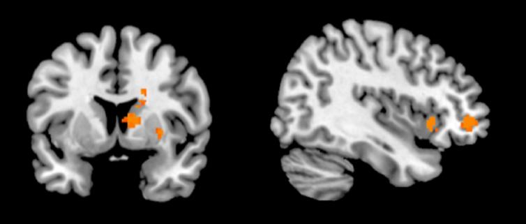 Cerveau et paris